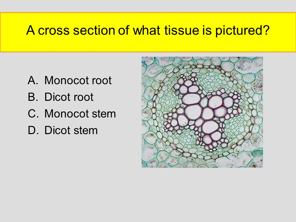 A cross section of what tissue is pictured