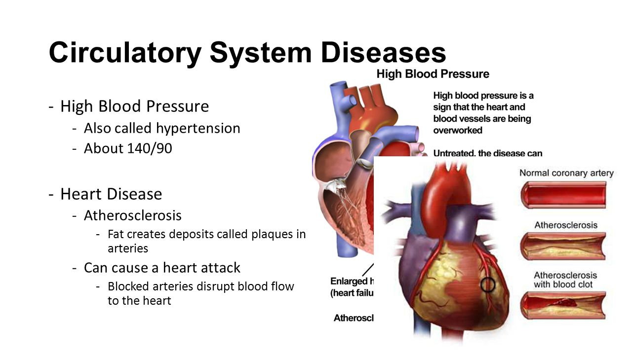 Chapter 332 Blood And Heart Disease Ppt Video Online Download
