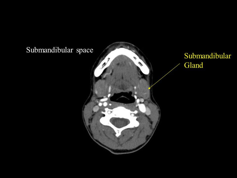 CT Head and Neck Emergency Requests from Emerg or ENT - ppt video ...