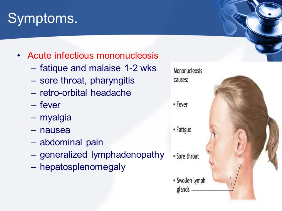 Infectious Mononucleosis  - ppt video online download