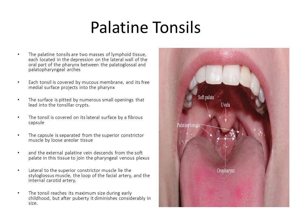 Beste Palatine Tonsils Pictures Zeitgenössisch - Anatomie Ideen ...