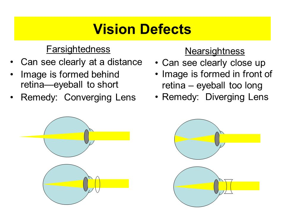 Vision Defects Farsightedness Nearsightness