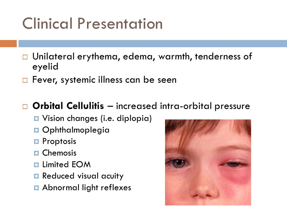 5 Clinical Presentation