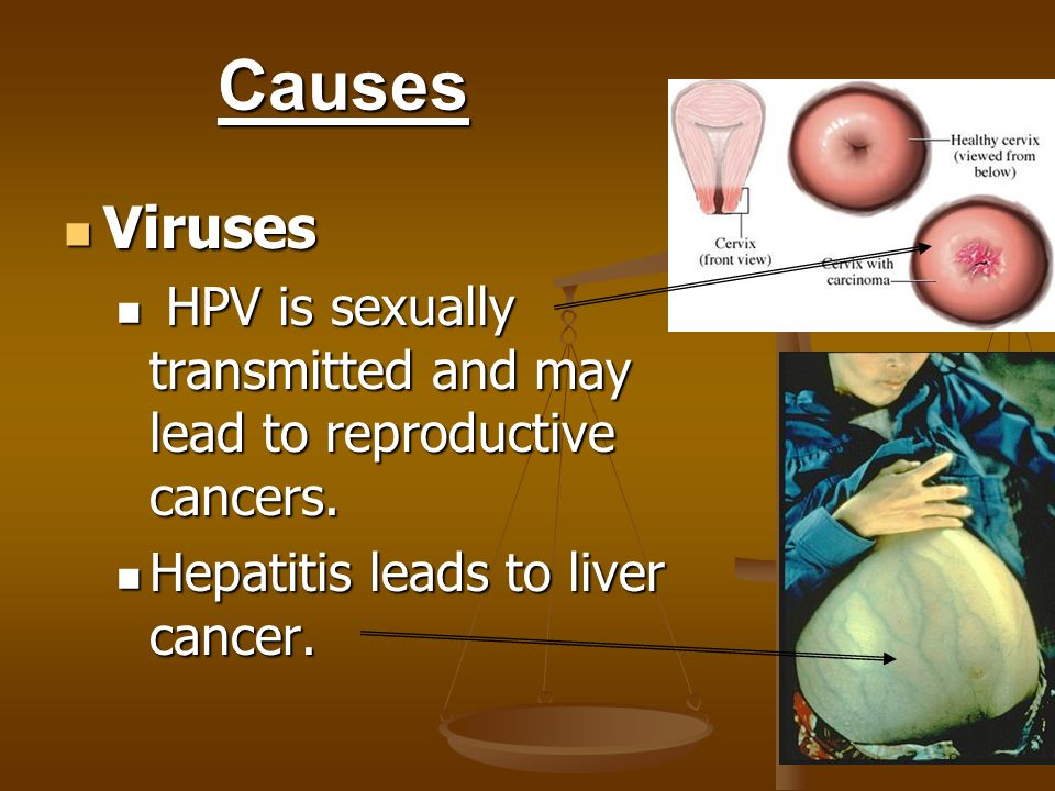 Causes Viruses. HPV is sexually transmitted and may lead to reproductive cancers.