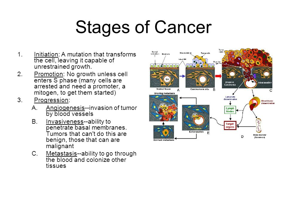 Stages of Cancer Initiation: A mutation that transforms the cell, leaving it capable of unrestrained growth.