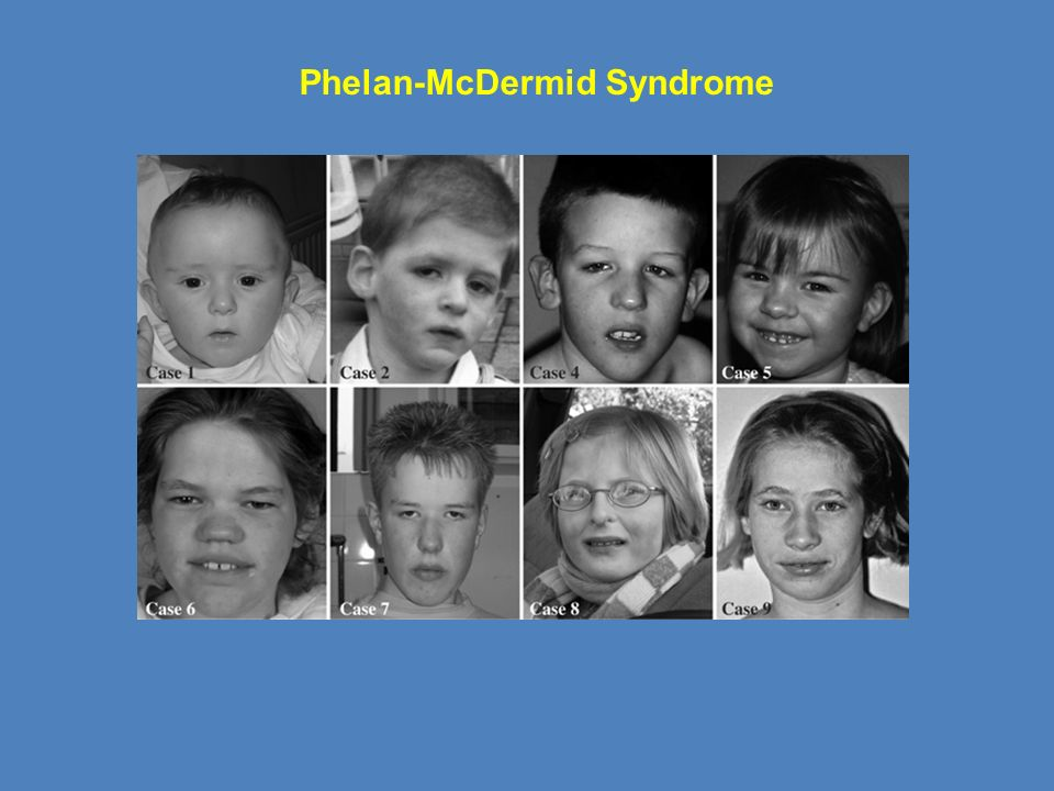 phelan mcdermid syndrome