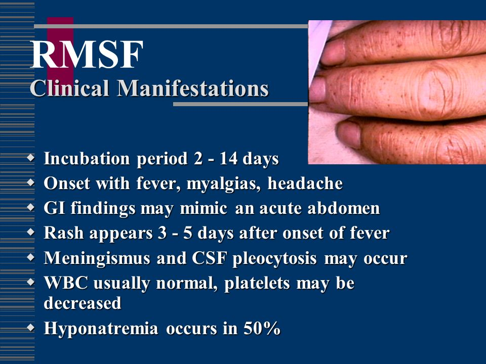RMSF Clinical Manifestations