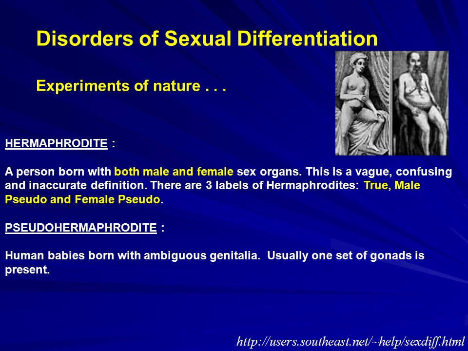 disorder of sexual differentiation ppt