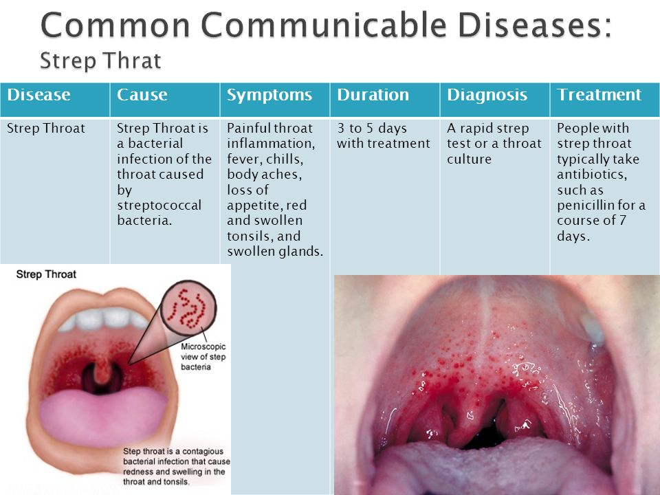 Sexually transmitted diseases like gonorrhea throat