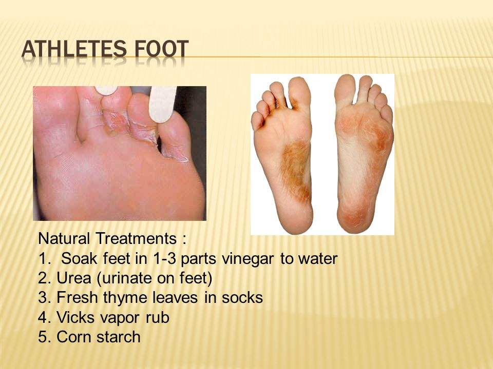 Urine pee on feet athletes foot