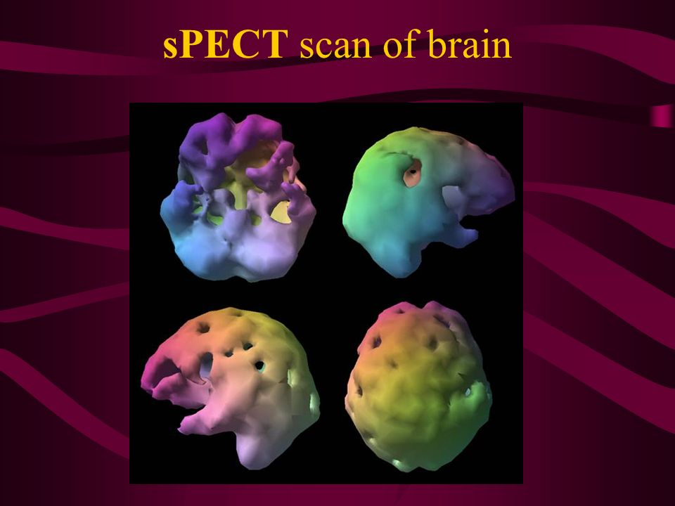 sPECT scan of brain