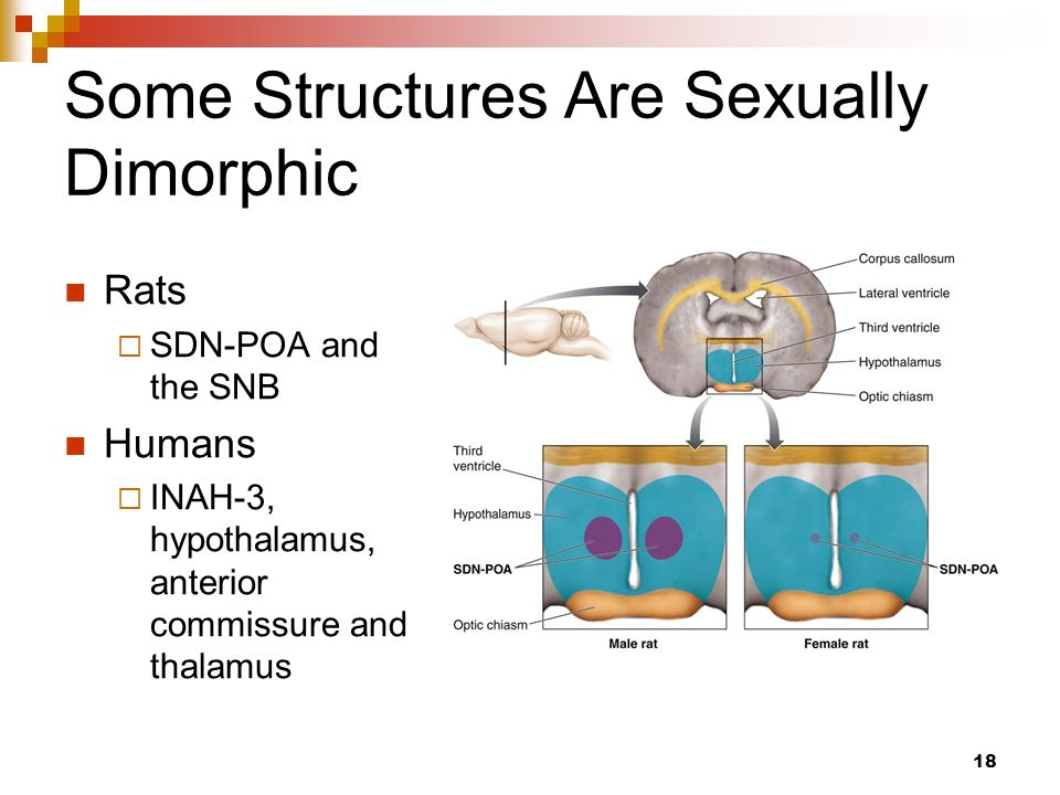 Sexually dimorphic brain areas