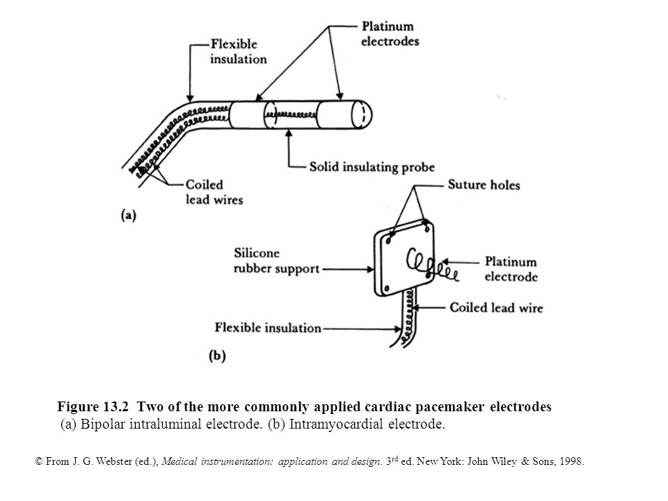 Figure+13.2+Two+of+the+more+commonly+applied+cardiac+pacemaker+electrodes+%28a%29+Bipolar+intraluminal+electrode. figure 13 1 block diagram of an asynchronous cardiac pacemaker ppt