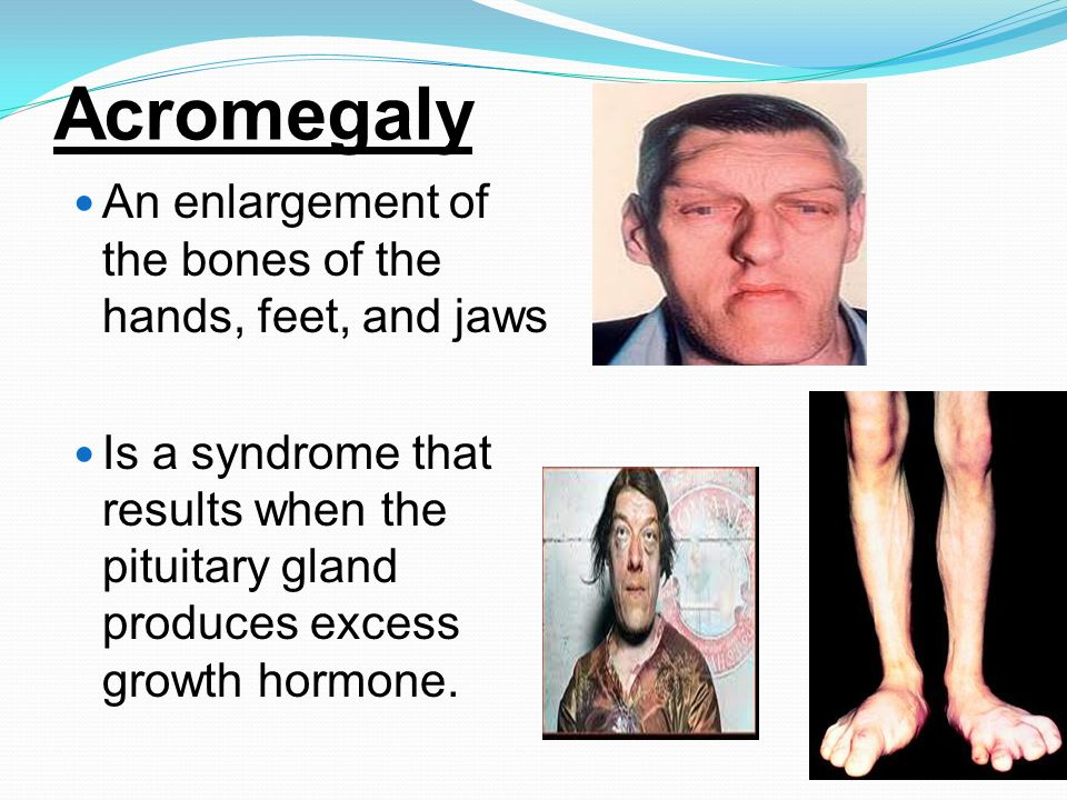 Acromegaly An enlargement of the bones of the hands, feet, and jaws