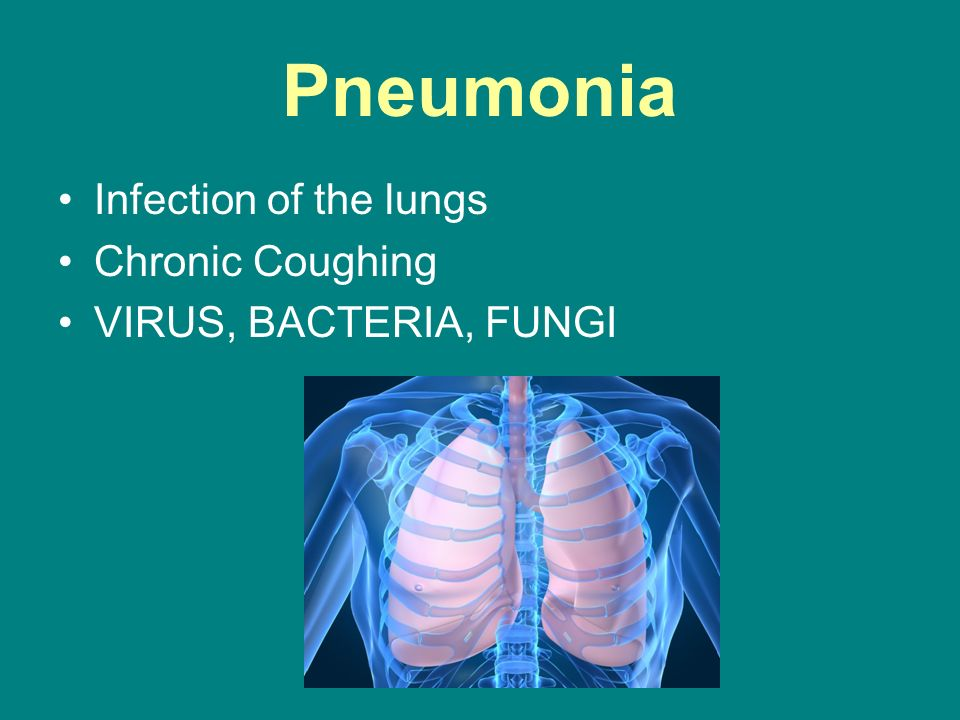 Pneumonia Infection of the lungs Chronic Coughing