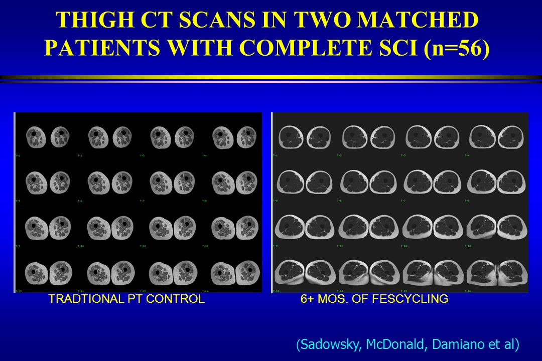 THIGH CT SCANS IN TWO MATCHED PATIENTS WITH COMPLETE SCI (n=56)