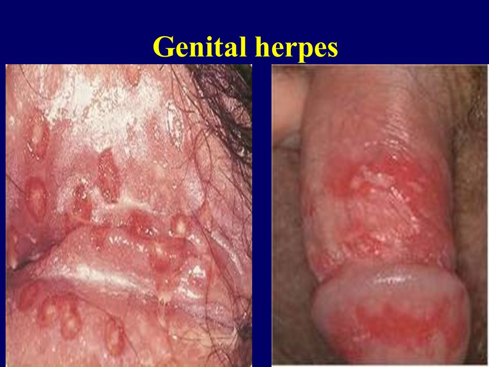 what is anal herpes