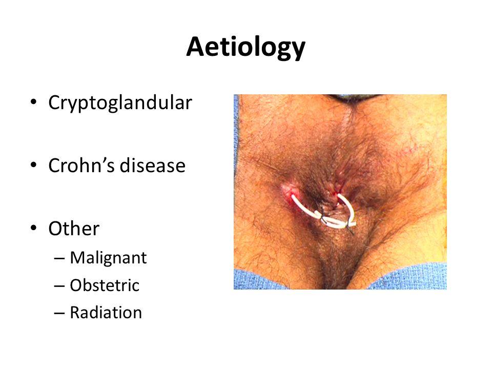 Urogenital Fistulas