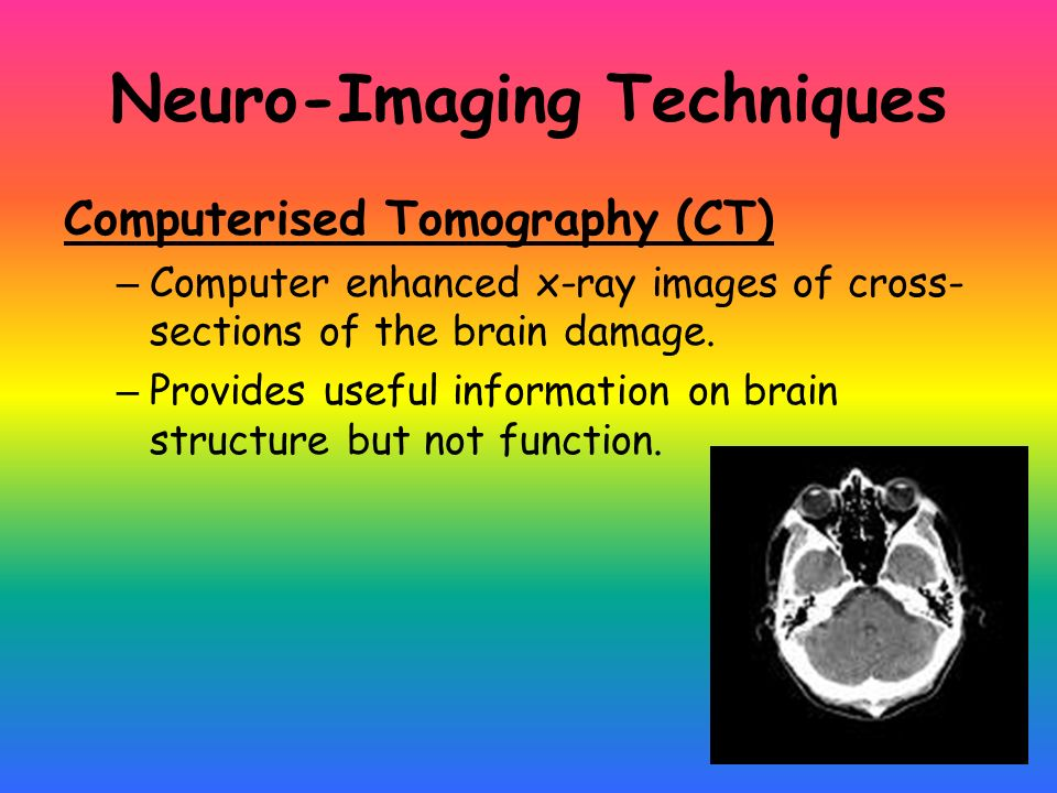 Brain Research Methods Ppt Video Online Download