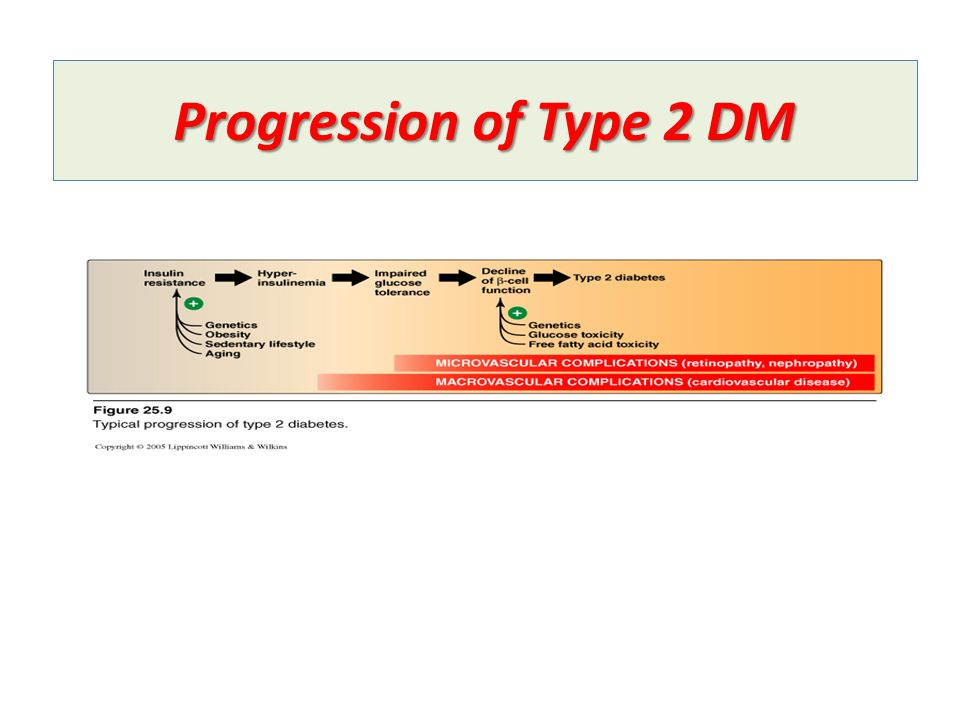 Progression of Type 2 DM
