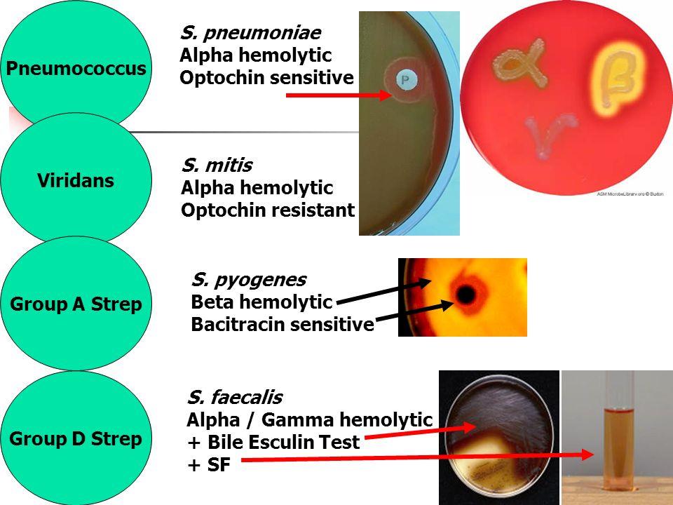 Streptococcus Gram+ cocci In chains. - ppt video online ...   960 x 720 jpeg 87kB