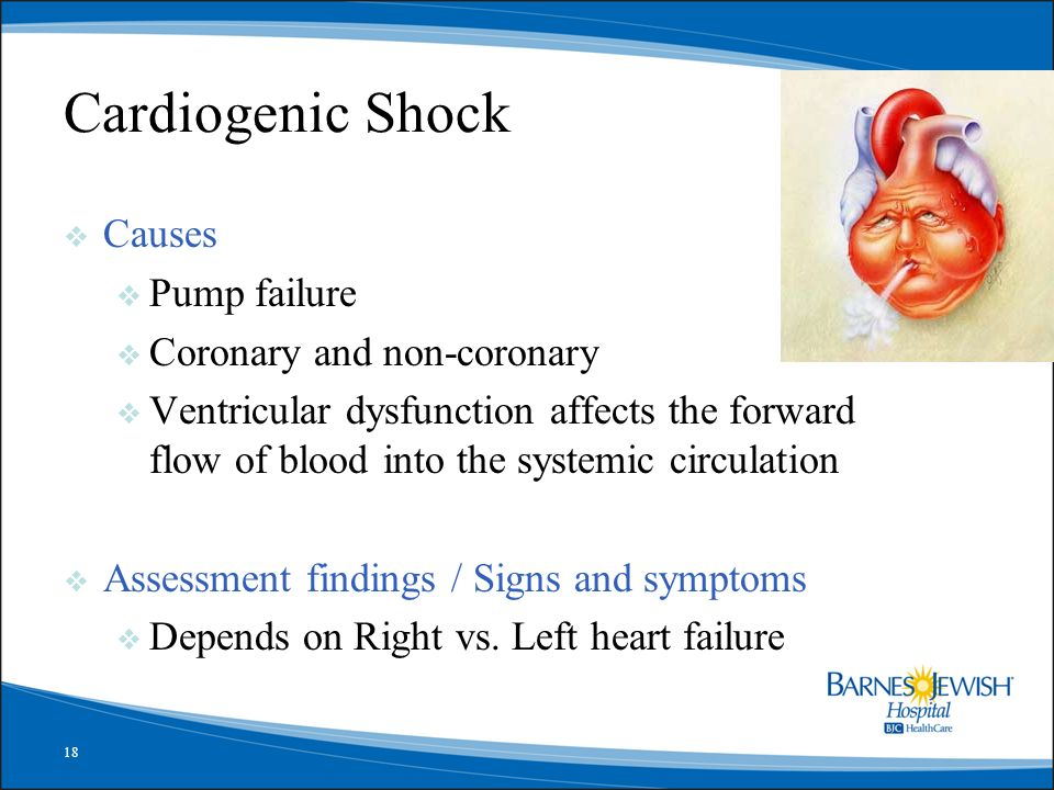 Cardiogenic Shock Causes Pump failure Coronary and non-coronary