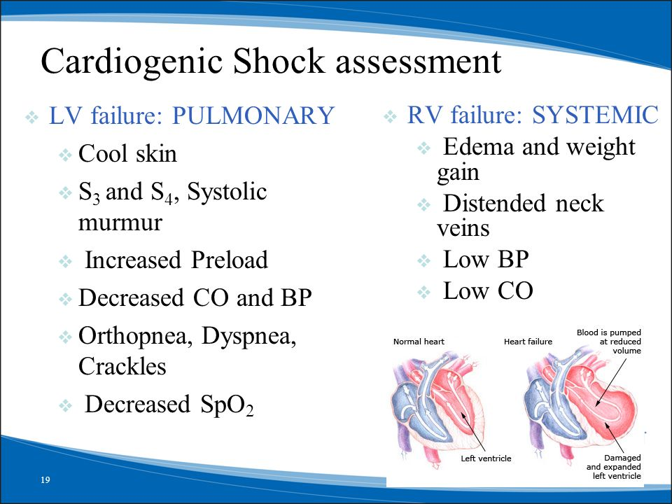 Cardiogenic Shock assessment