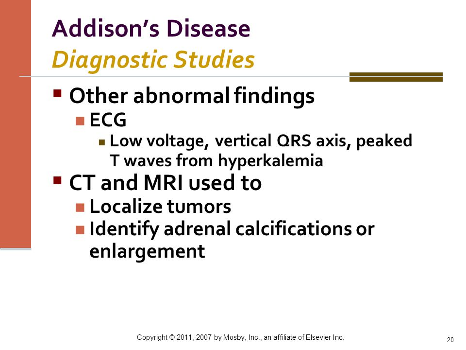Addison's Disease Diagnostic Studies