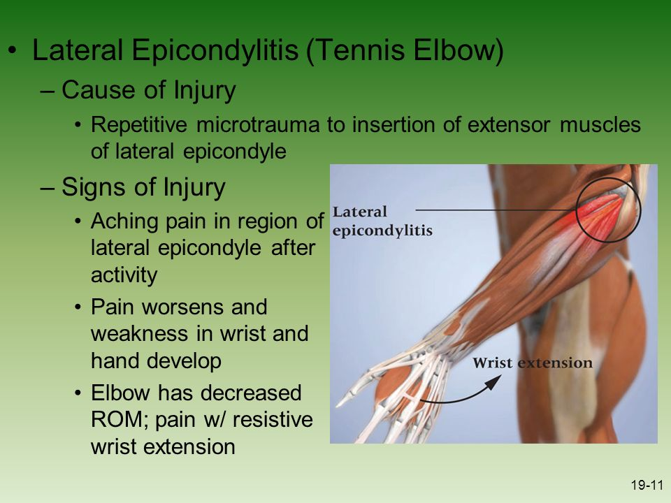 Chapter 19 The Elbow Forearm Wrist And Hand Ppt Video Online