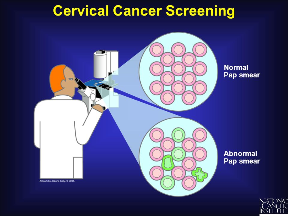Cervical Cancer Screening Understanding Cancer and Related Topics