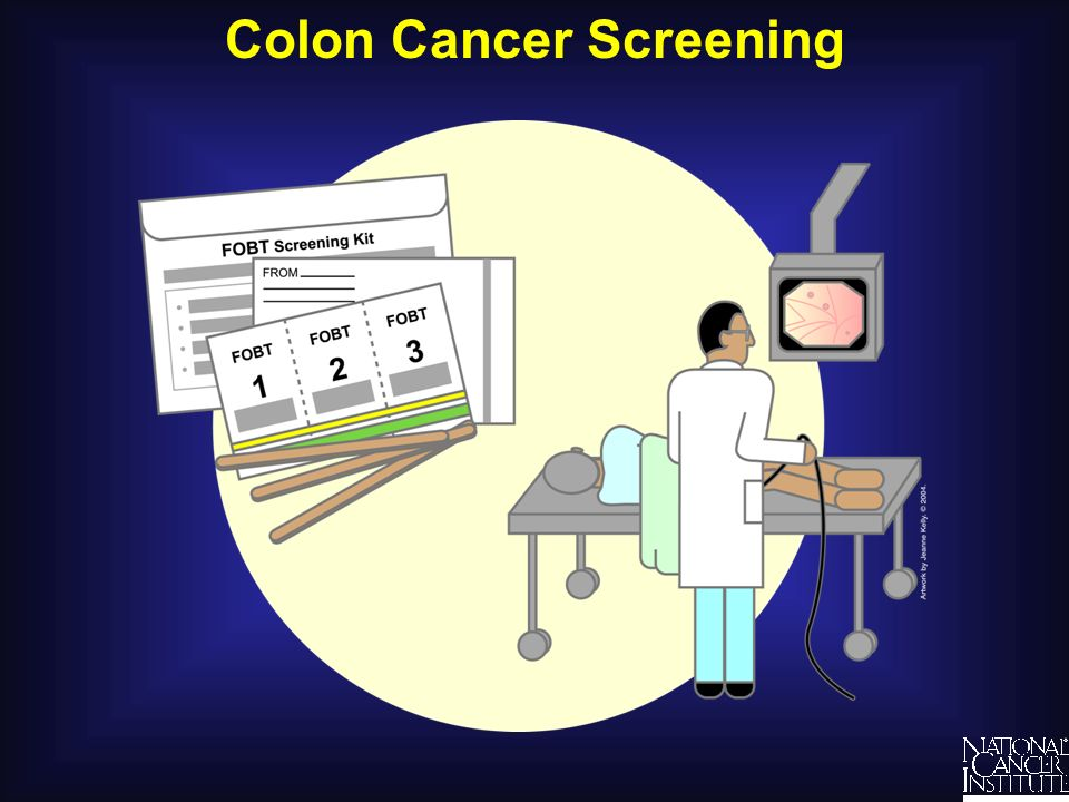Colon Cancer Screening Understanding Cancer and Related Topics