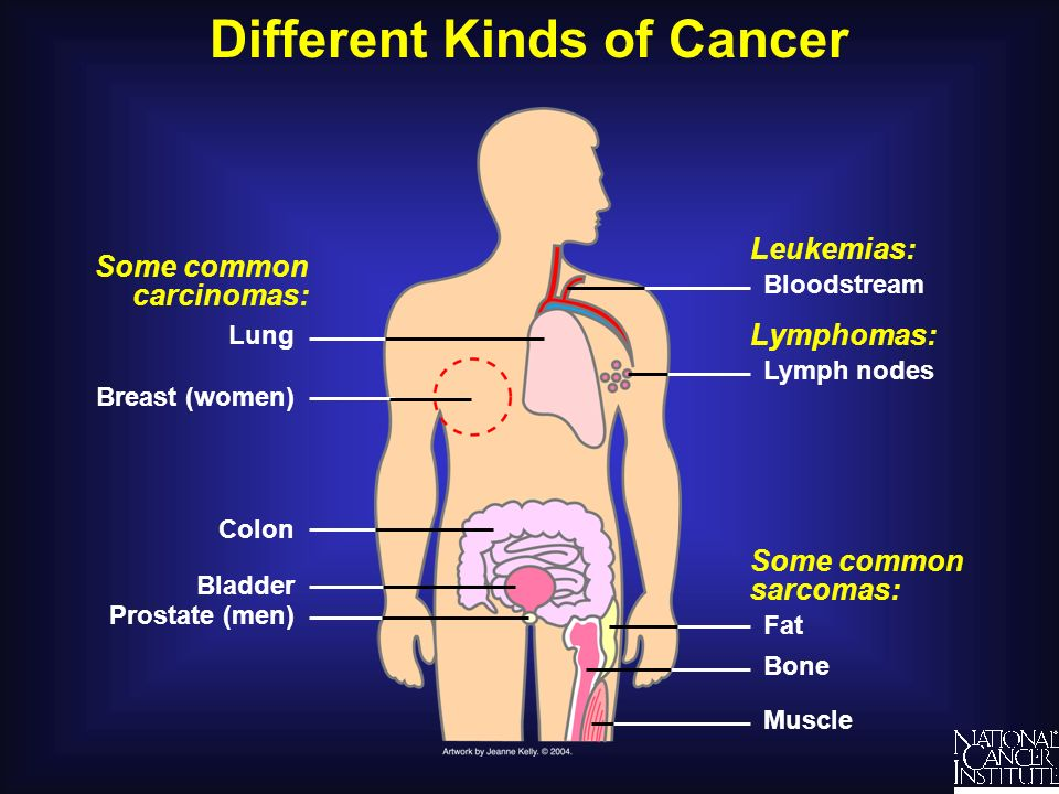 Different Kinds of Cancer Understanding Cancer and Related Topics