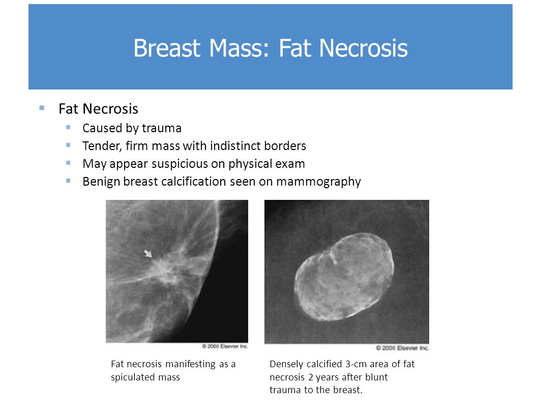 Disorders of the Breast - ppt video online download