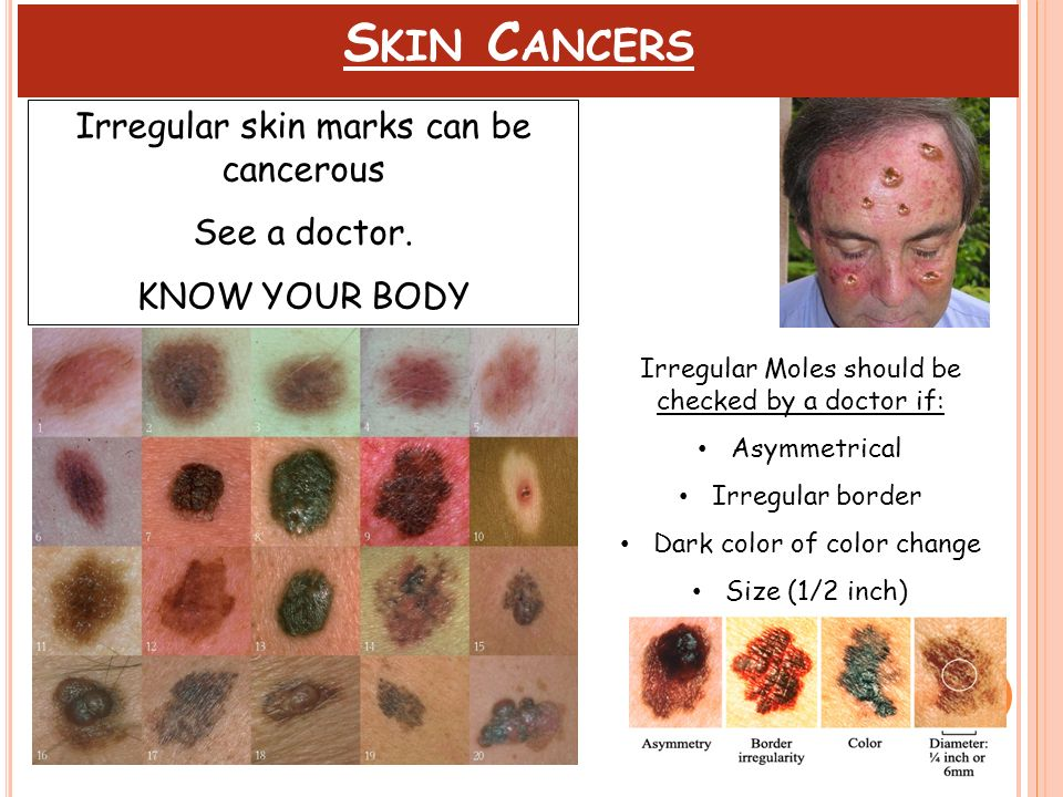 Skin Cancers Irregular skin marks can be cancerous See a doctor.