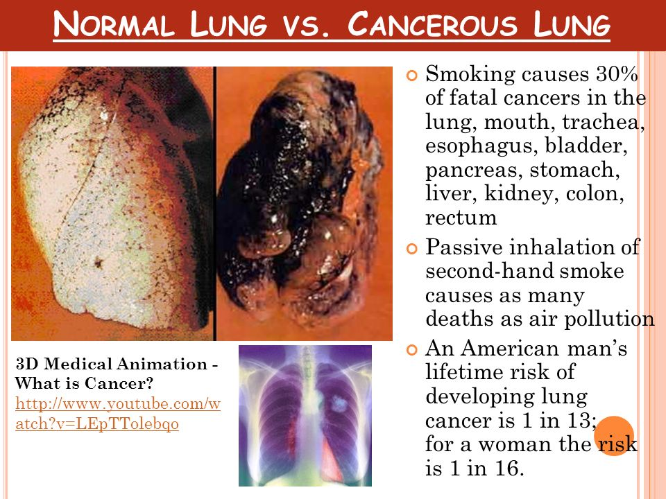 Normal Lung vs. Cancerous Lung