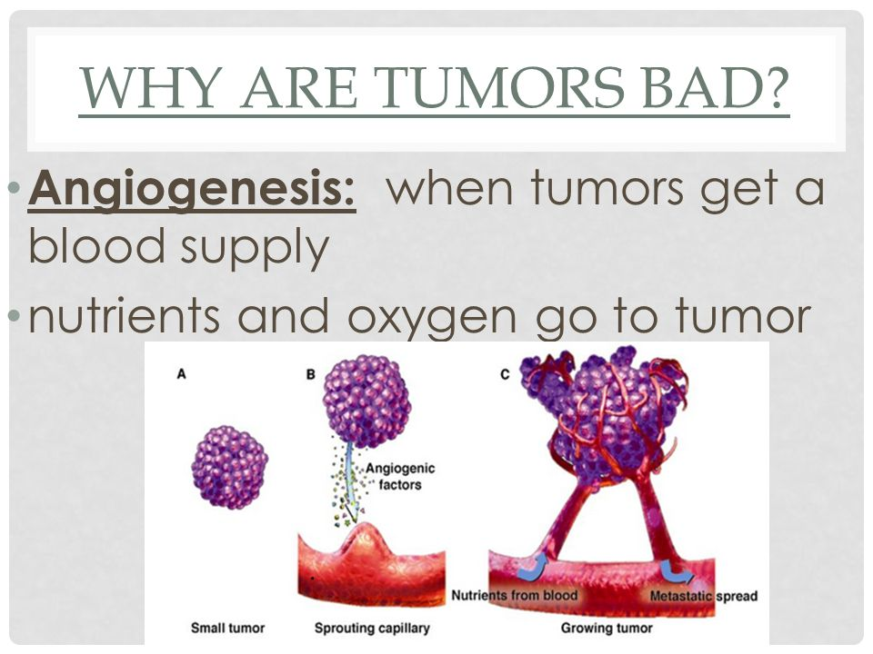 Why are Tumors bad Angiogenesis: when tumors get a blood supply