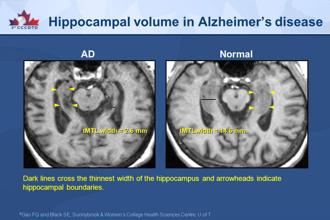Hippocampal volume in Alzheimer's disease