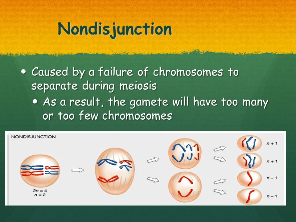 Nondisjunction Caused by a failure of chromosomes to separate during meiosis.