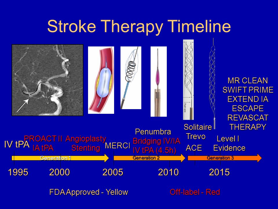 Interventional Stroke Treatment Ppt Video Online Download