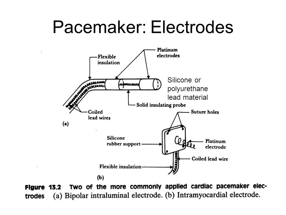Lecture 5 Cardioverter Pacemakers Ppt Download
