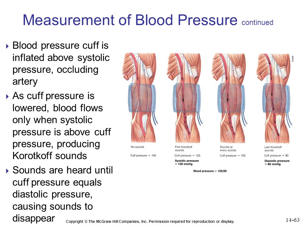 Chapter 14 Cardiac Output, Blood Flow, and Blood Pressure ppt video ...