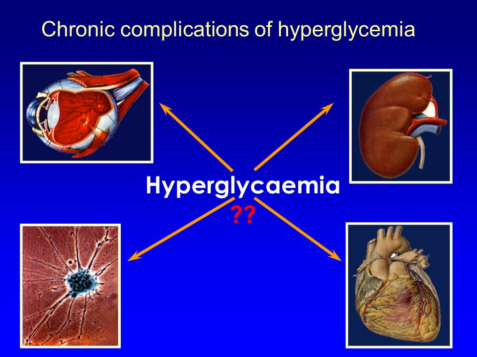 Chronic complications of hyperglycemia
