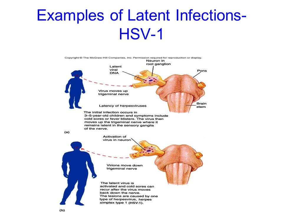 Examples of Latent Infections- HSV-1