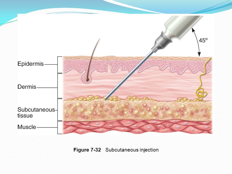 Figure 7-32 Subcutaneous injection