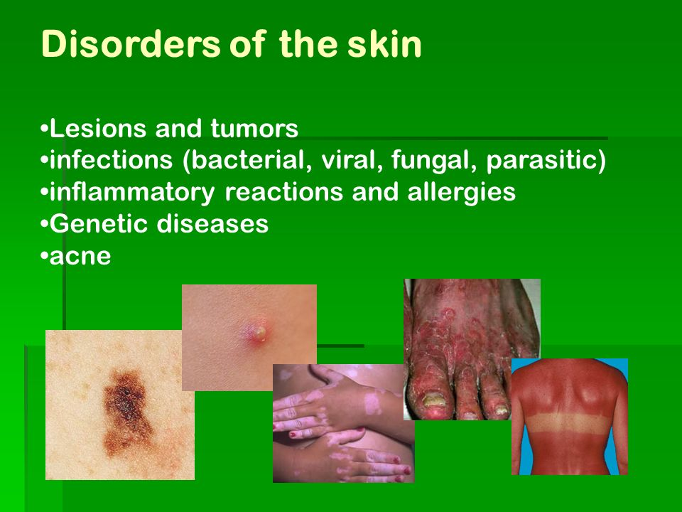 Disorders of the skin Lesions and tumors