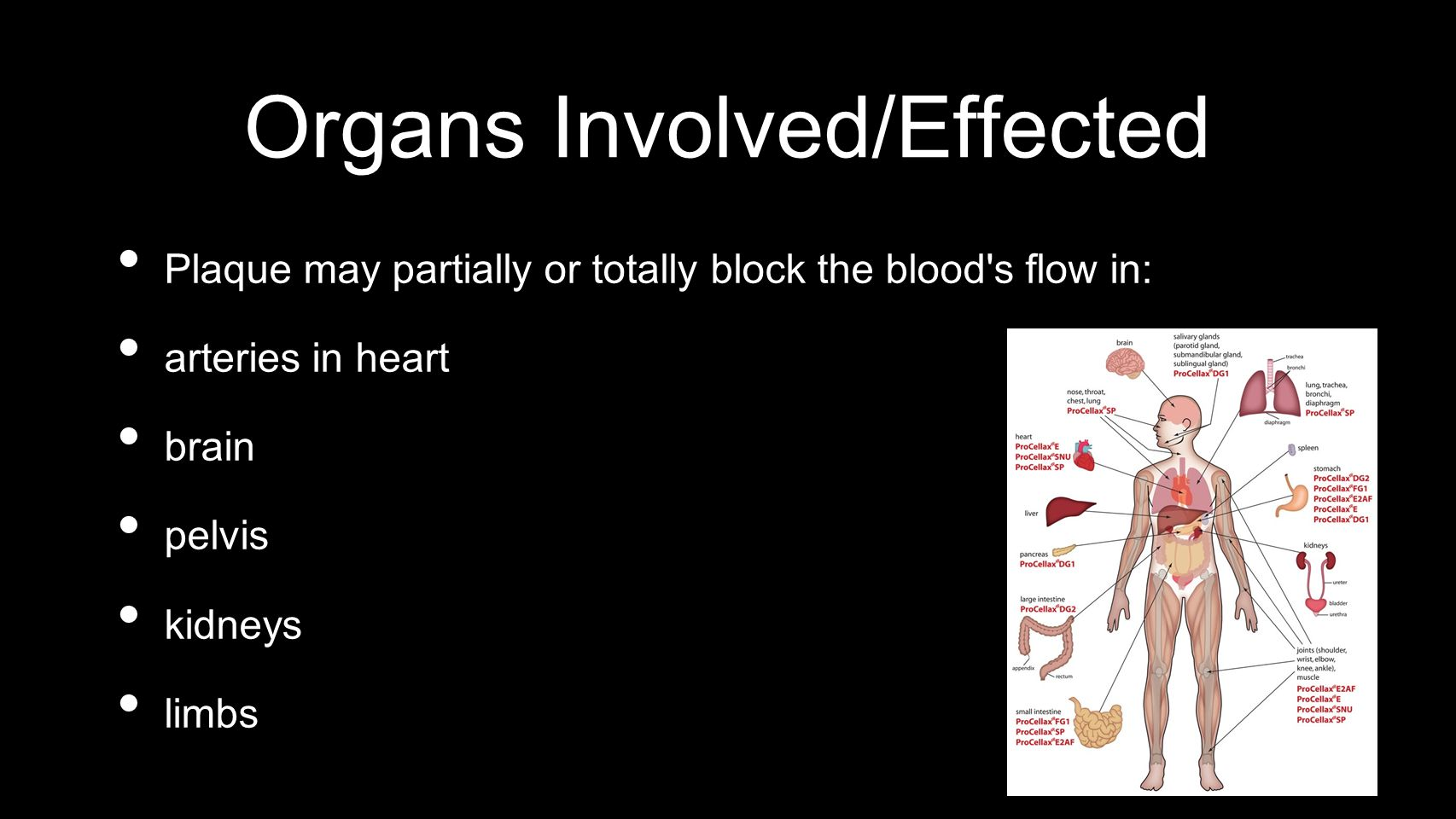 Organs Involved/Effected