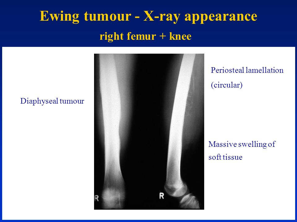 Ewing tumour - X-ray appearance