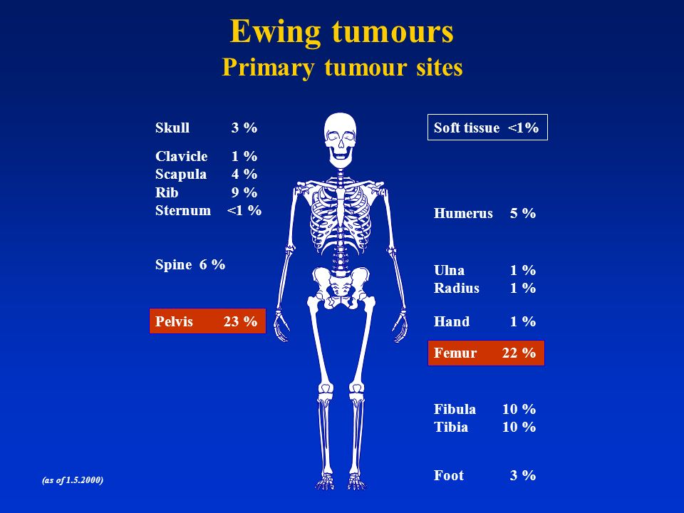 Ewing tumours Primary tumour sites Skull 3 % Soft tissue <1%