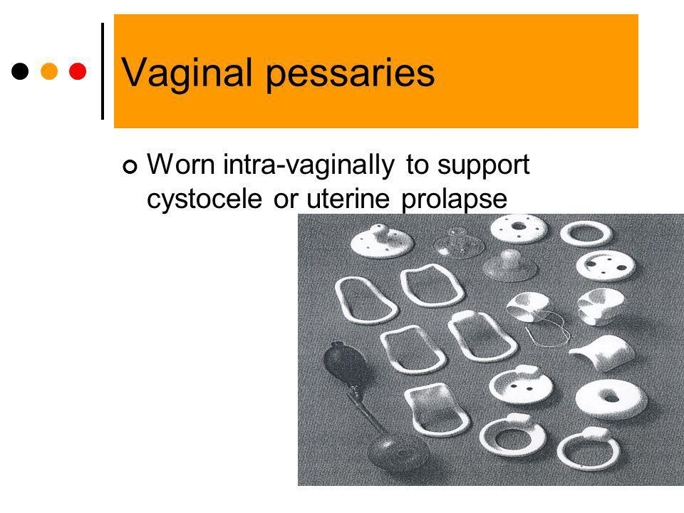 Vaginal pessaries Worn intra-vaginally to support cystocele or uterine prolapse