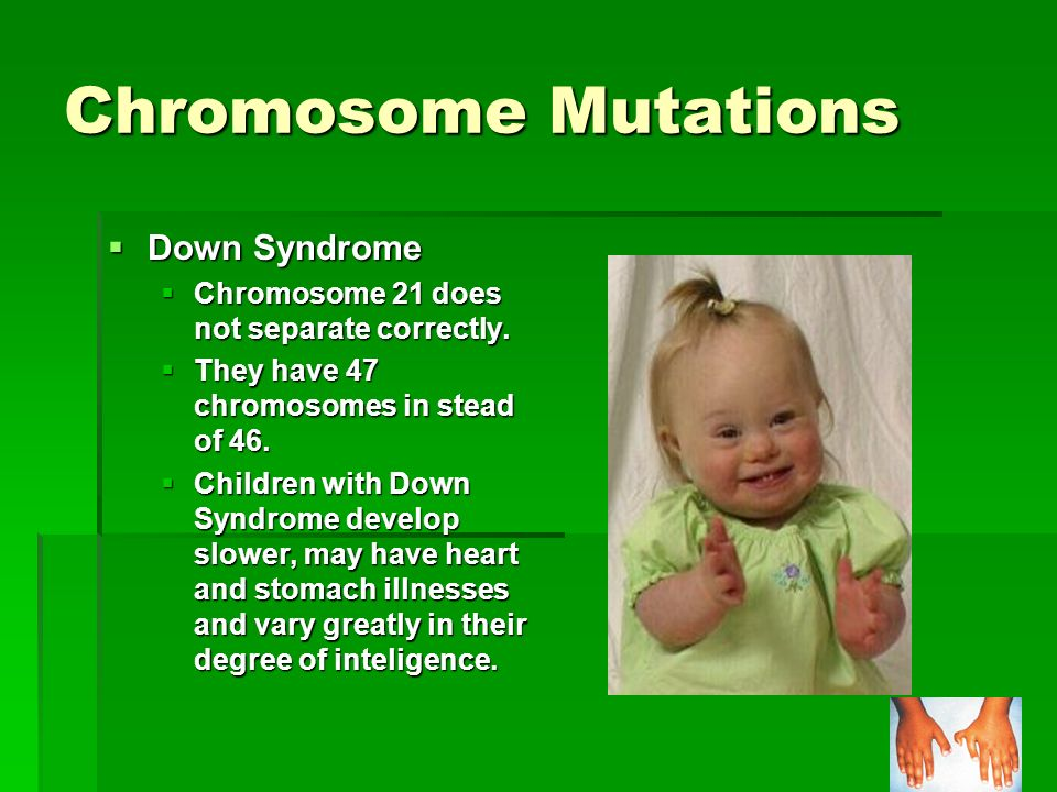 Chromosome Mutations Down Syndrome